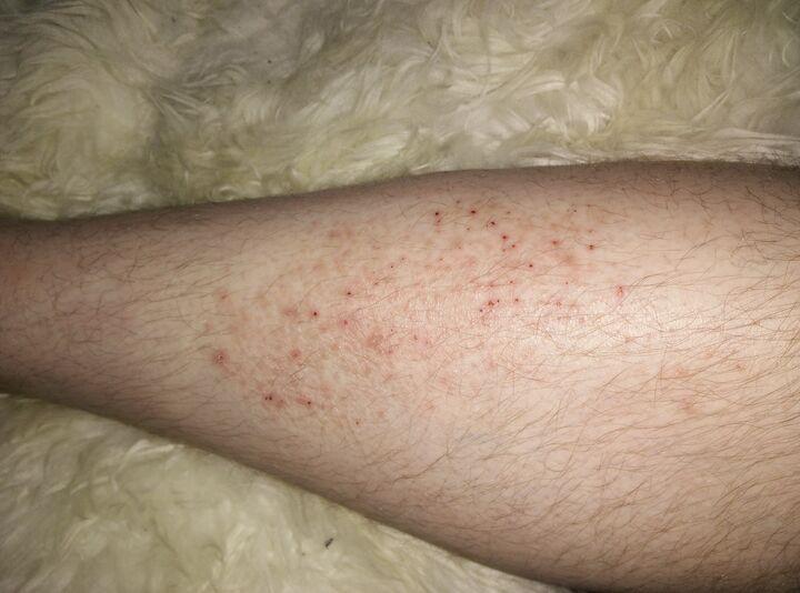 kliande sår på benet